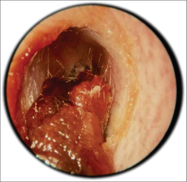 Figure 1: Wax in the ear canal