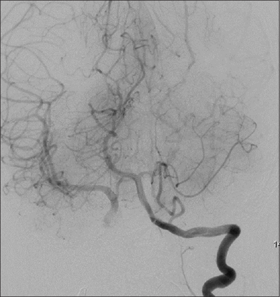 Figure 5: Digital subtraction angiography image showing postparent vessel occlusion filling of the right side middle cerebral artery via collaterals from posterior communicating arteries