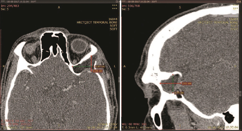 Figure 2: Preoperative computed tomography scan of frontotemporal dermoid