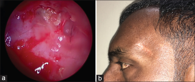 Figure 3: (a) Endoscopic appearance of the dermoid cavity within the sphenoid bone, (b) Postoperative appearance of healed surgical site